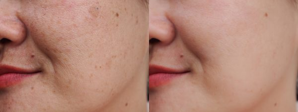 Cortisol: what it is and how it affects the skin if produced in excess